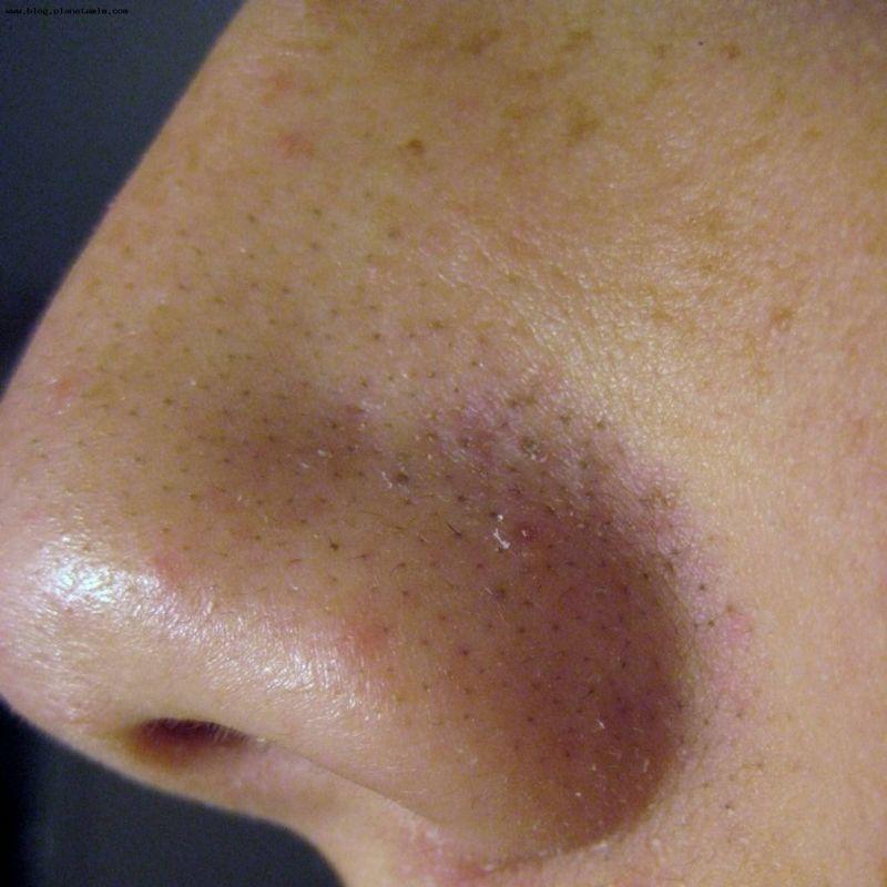 Как убрать черные точки на лице